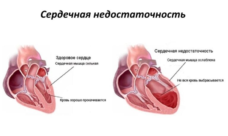 Как лечить сердечную недостаточность у ребенка