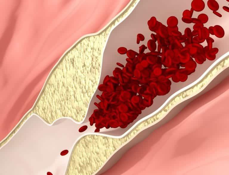 45Как в домашних условиях почистить сосуды от холестерина