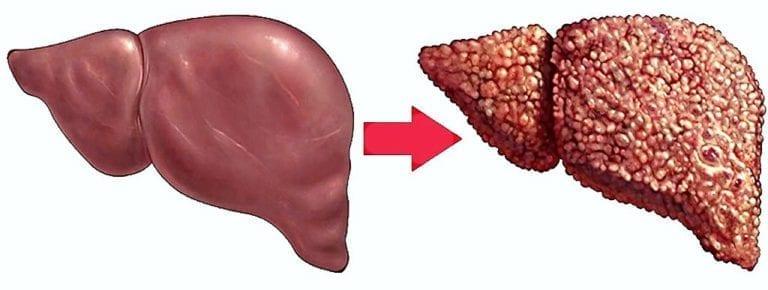 Как лечит жировой дистрофии печени в народном