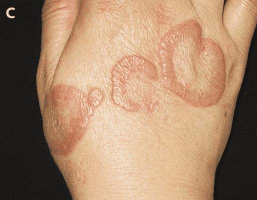актинические гранулемы рука