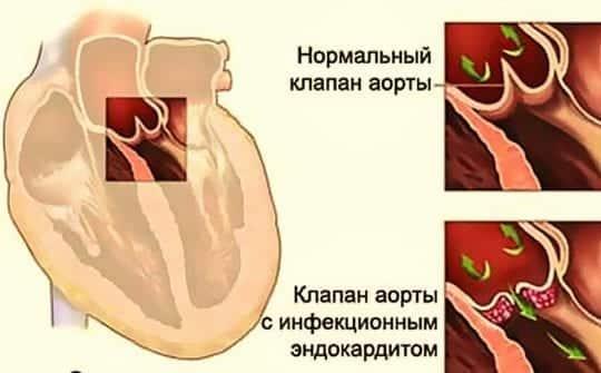 инфекционный эндокардит