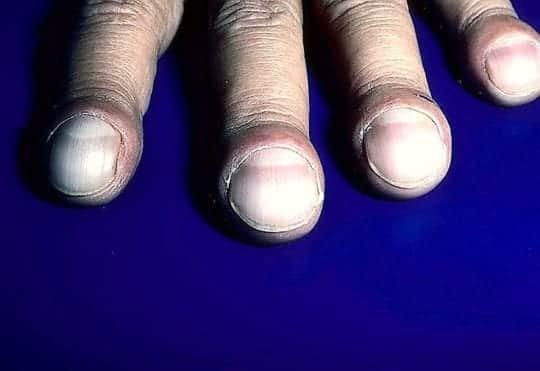 пальцы как барабанные палочки
