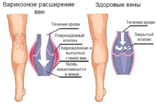 Сосуды нижних конечностей симптомы