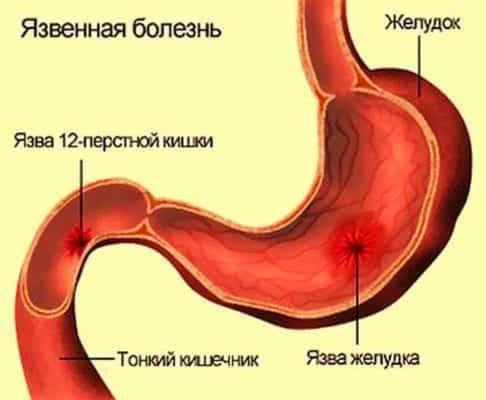 первые признаки язвы желудка и двенадцатиперстной кишки