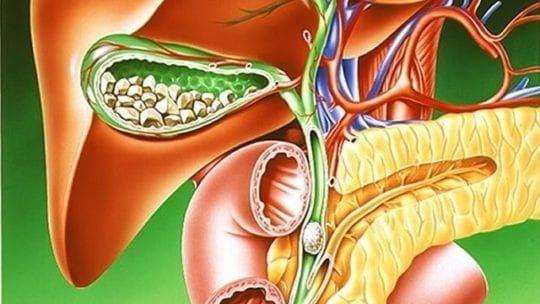 Желчекаменная болезнь, лечение народными средствами. Можно ли избежать операции?