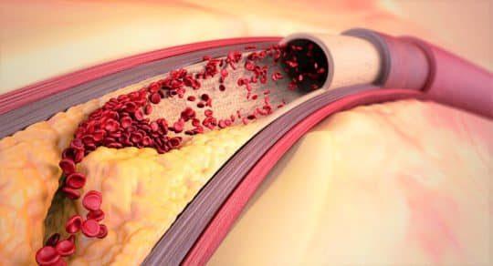Как быстро снизить холестерин: таблетки есть, но можно без лекарств