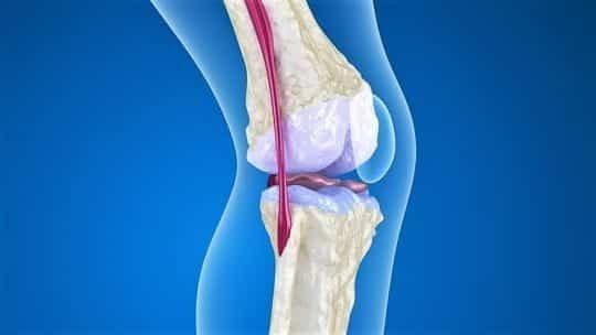 Остеопороз коленного сустава, симптомы и лечение: 3 принципа избавления от болезни