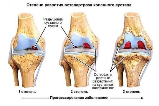 епороза коленного сустава