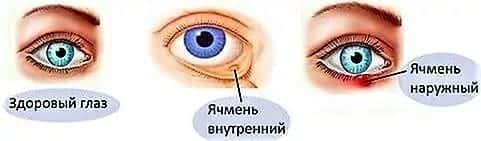 ячмень на глазу лечение у детей
