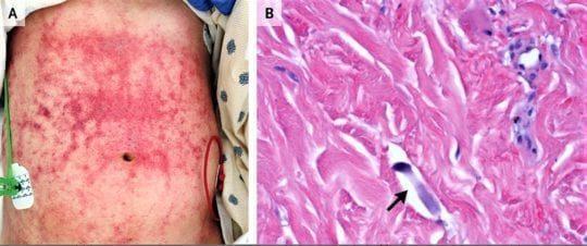 Стронгилоидоз stercoralis гиперинфекции