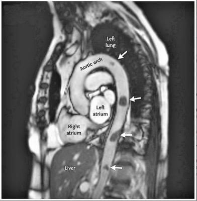 Мобильный аортального Тромбы1