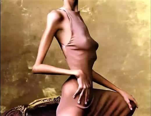 исхудалое тело