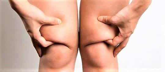 Как убрать жир с коленей: упражнения в домашних условиях
