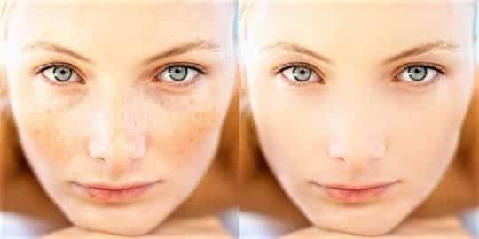 Пигментные пятна на лице: причины и лечение. Народные и медсредства